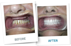 Miracle Dentures | Snap in Dentures | Mini Implant Dentures in Cancun