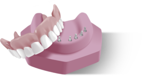 Miracle Dentures